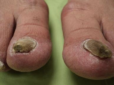 Természetes gyógymód a pikkelysömörre lábakon