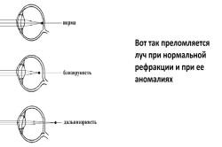 Szemcsepp, amely javítja a látásélességet - Retina