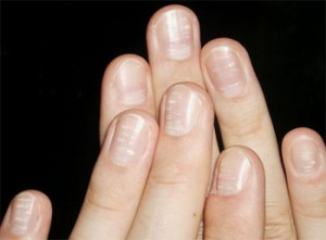 Деформация ногтевой пластины на большом пальце ноги и мизинце причины лечение фото